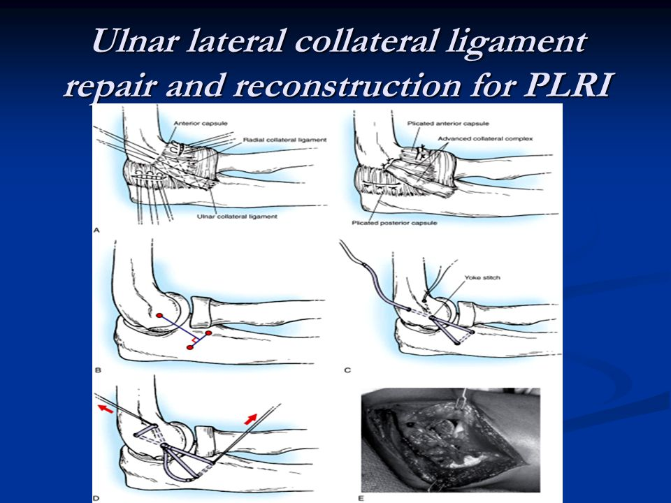 Ulnar lateral collateral ligament repair and reconstruction for PLRI