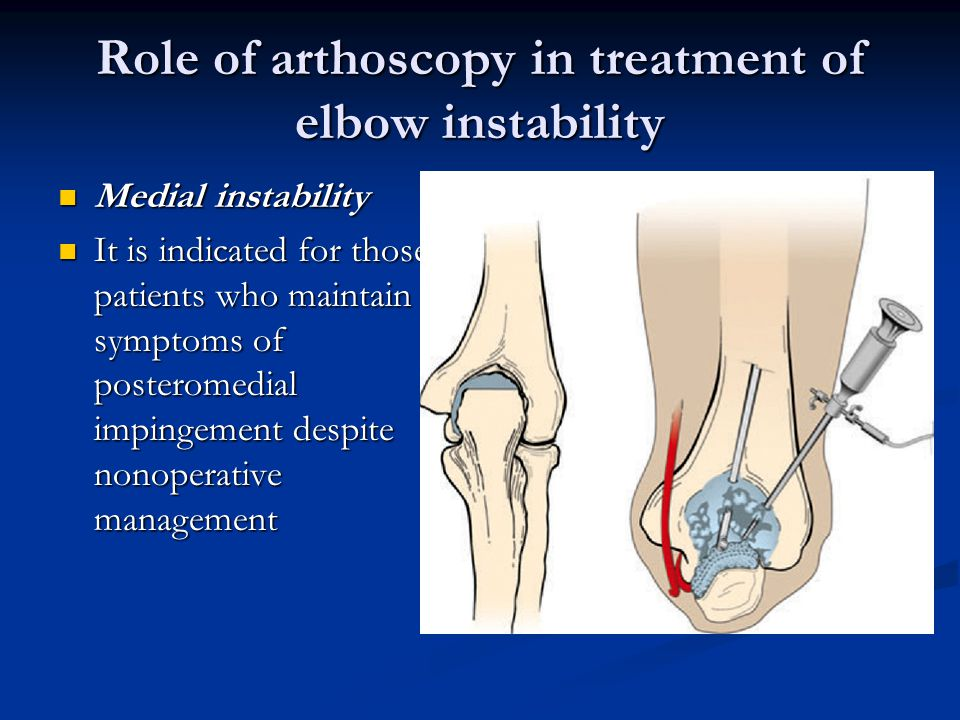 Role of arthoscopy in treatment of elbow instability