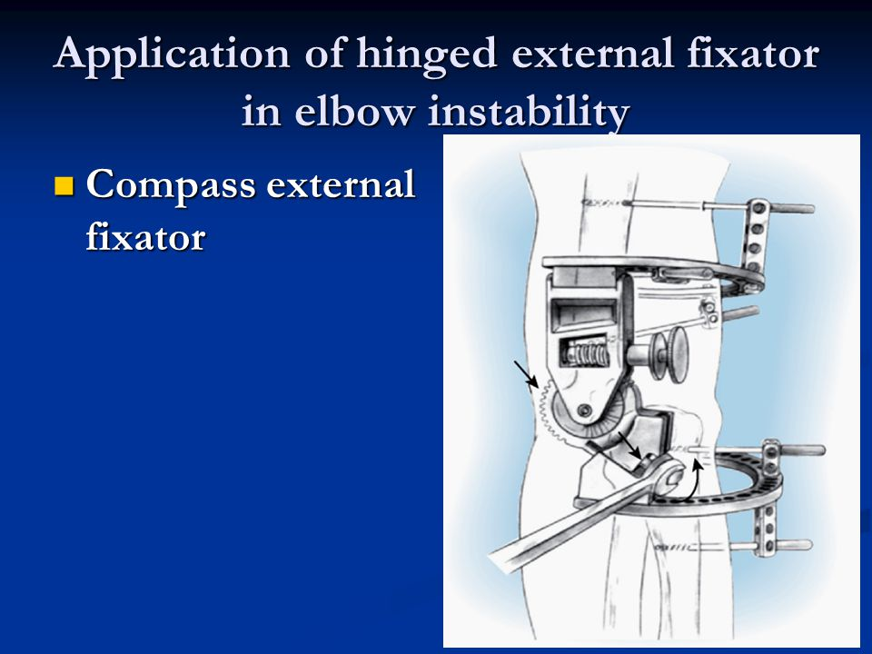 Application of hinged external fixator in elbow instability