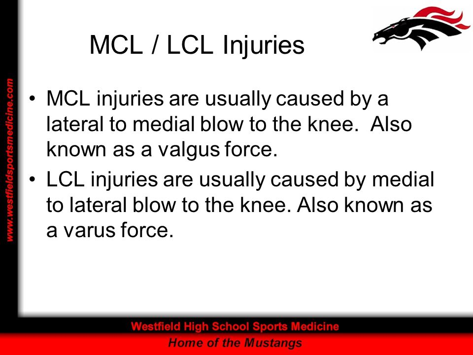 MCL / LCL Injuries MCL injuries are usually caused by a lateral to medial blow to the knee. Also known as a valgus force.