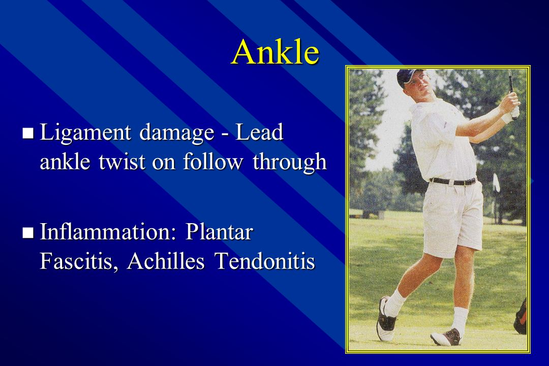 Ankle Ligament damage - Lead ankle twist on follow through