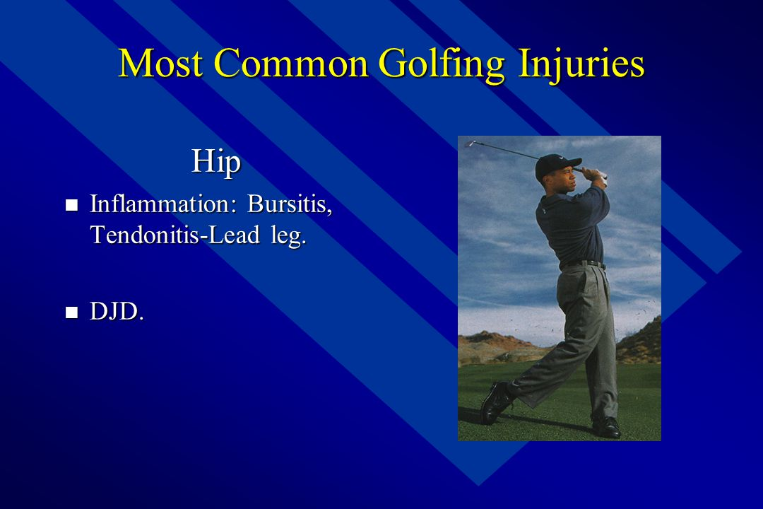 Most Common Golfing Injuries