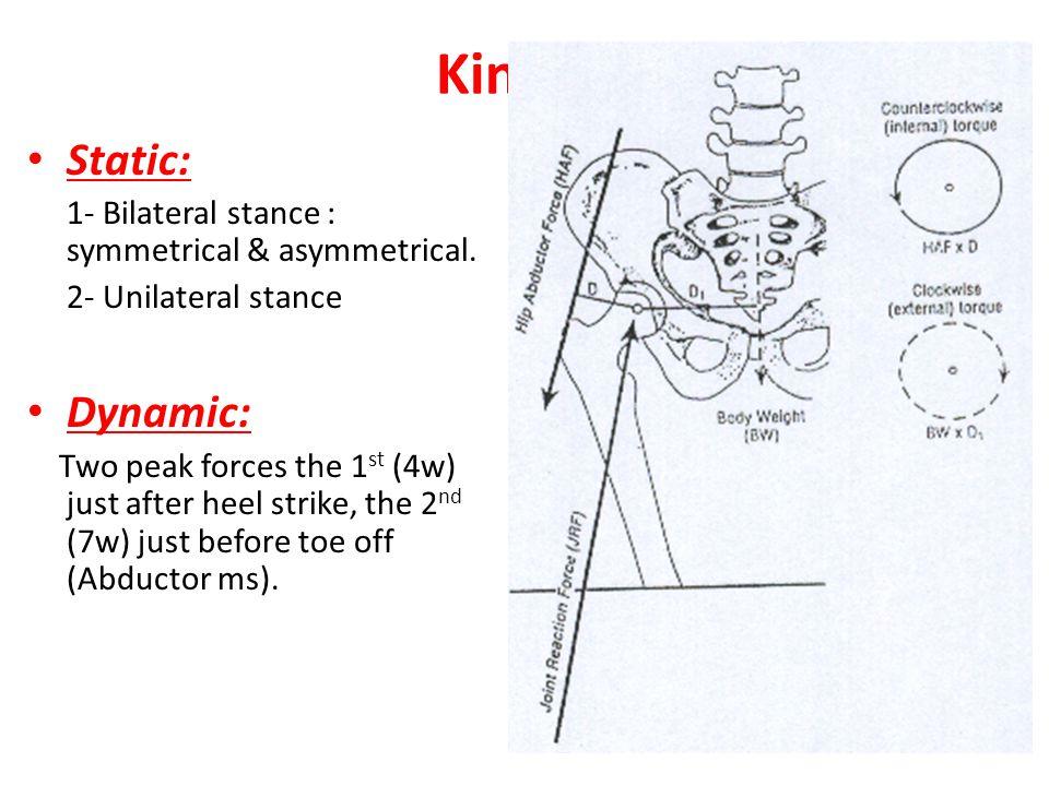 Kinetic Static: Dynamic: