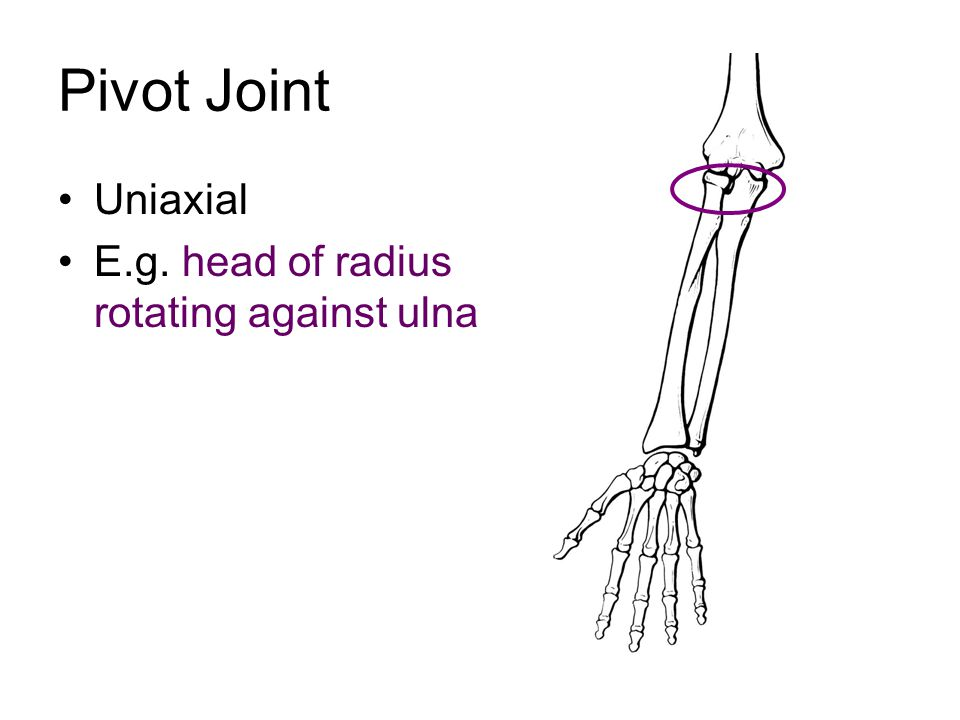Pivot Joint Uniaxial E.g. head of radius rotating against ulna