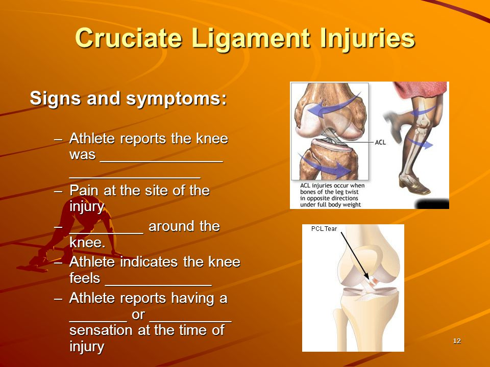 Cruciate Ligament Injuries