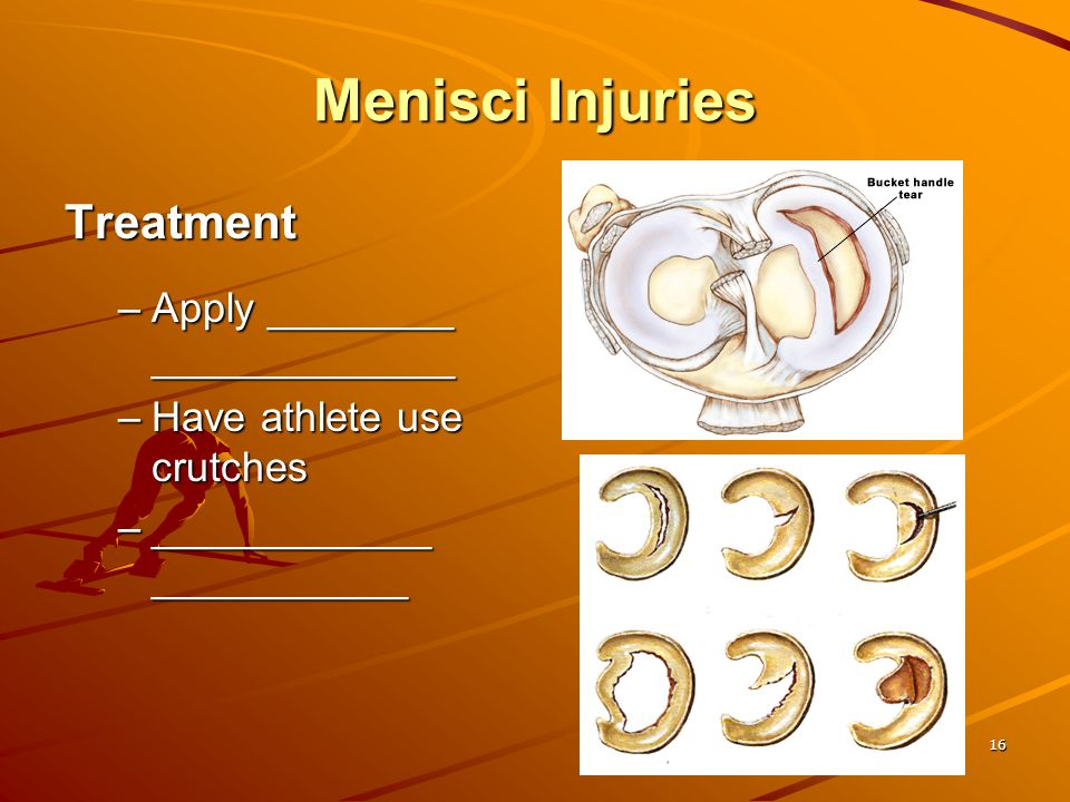 Menisci Injuries Treatment Apply ________ _____________