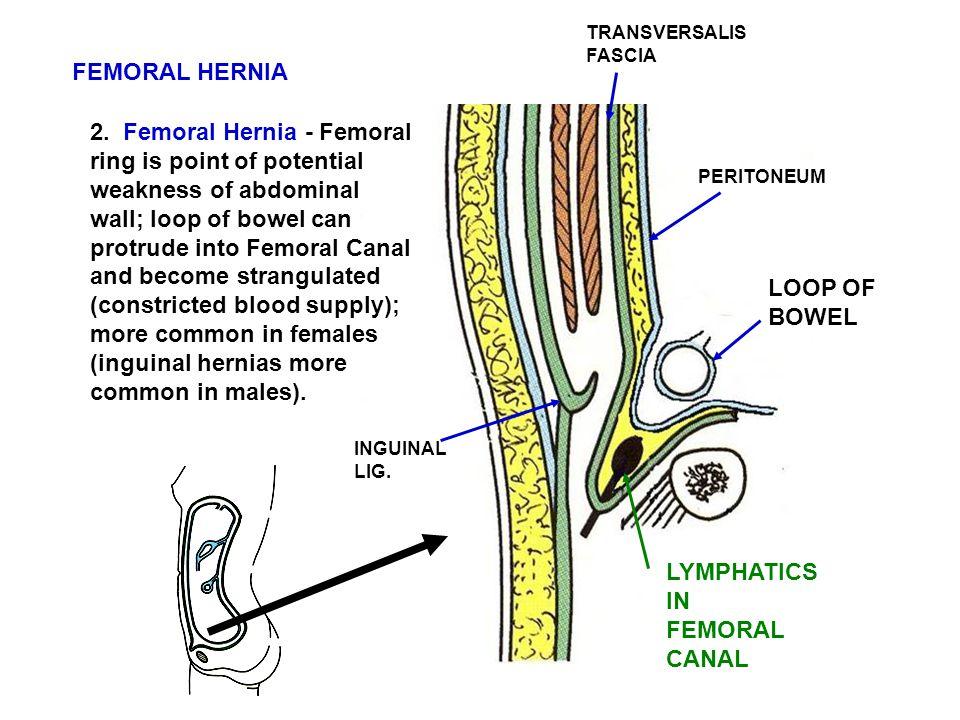 TRANSVERSALIS FASCIA. FEMORAL HERNIA.