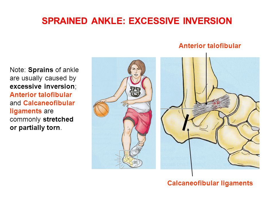 SPRAINED ANKLE: EXCESSIVE INVERSION
