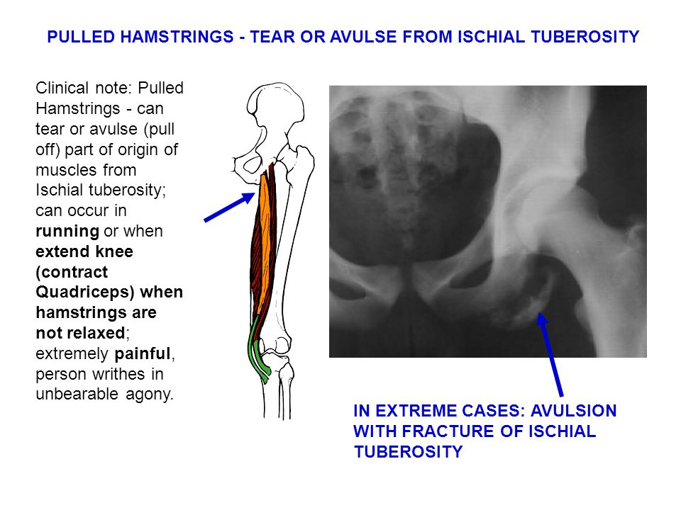 PULLED HAMSTRINGS - TEAR OR AVULSE FROM ISCHIAL TUBEROSITY