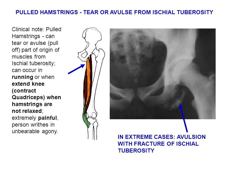 PULLED HAMSTRINGS - TEAR OR AVULSE FROM ISCHIAL TUBEROSITY