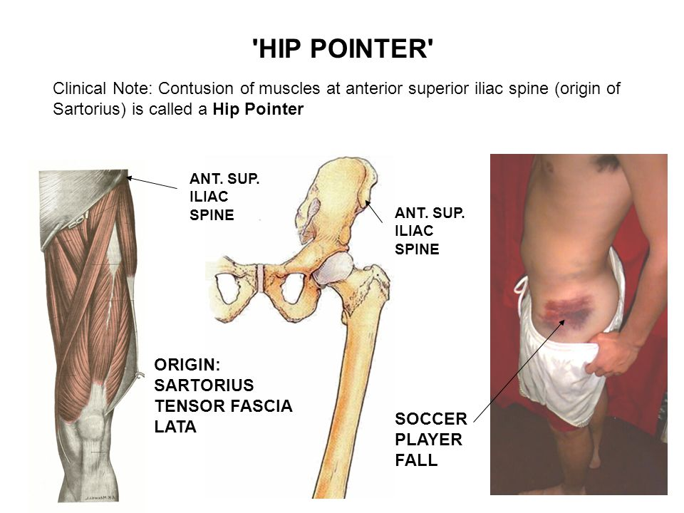 HIP POINTER Clinical Note: Contusion of muscles at anterior superior iliac spine (origin of Sartorius) is called a Hip Pointer.