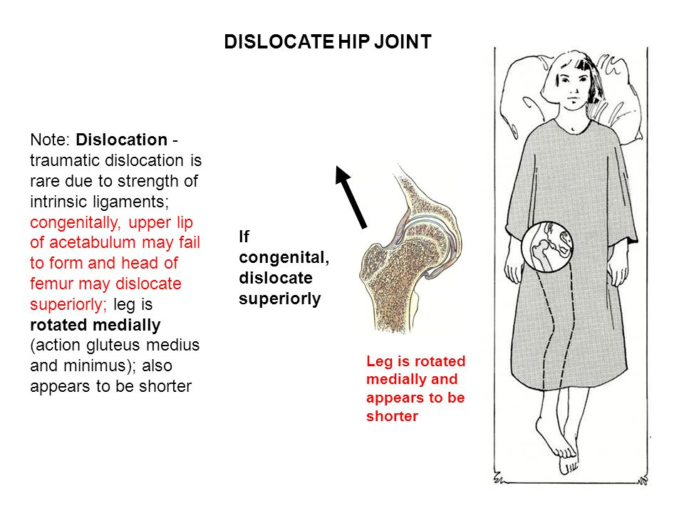 DISLOCATE HIP JOINT