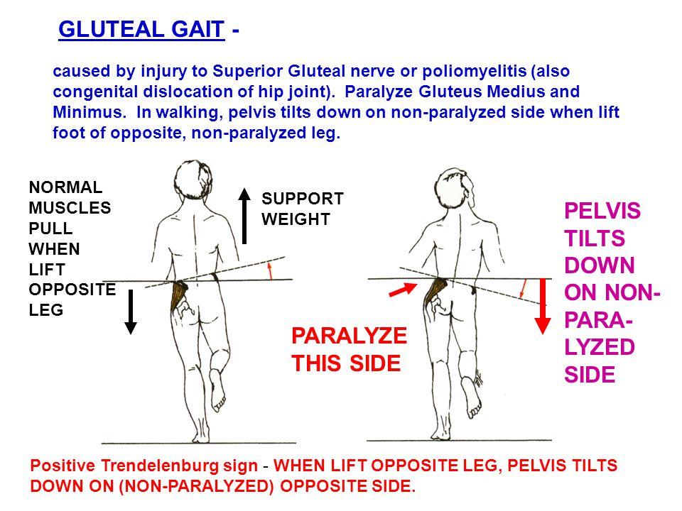 GLUTEAL GAIT - PELVIS TILTS DOWN ON NON- PARA-LYZED SIDE PARALYZE