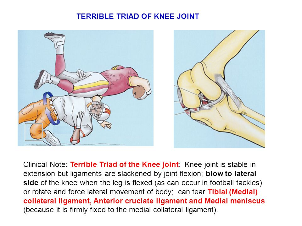 TERRIBLE TRIAD OF KNEE JOINT