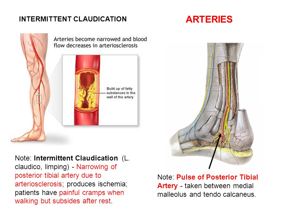 ARTERIES INTERMITTENT CLAUDICATION