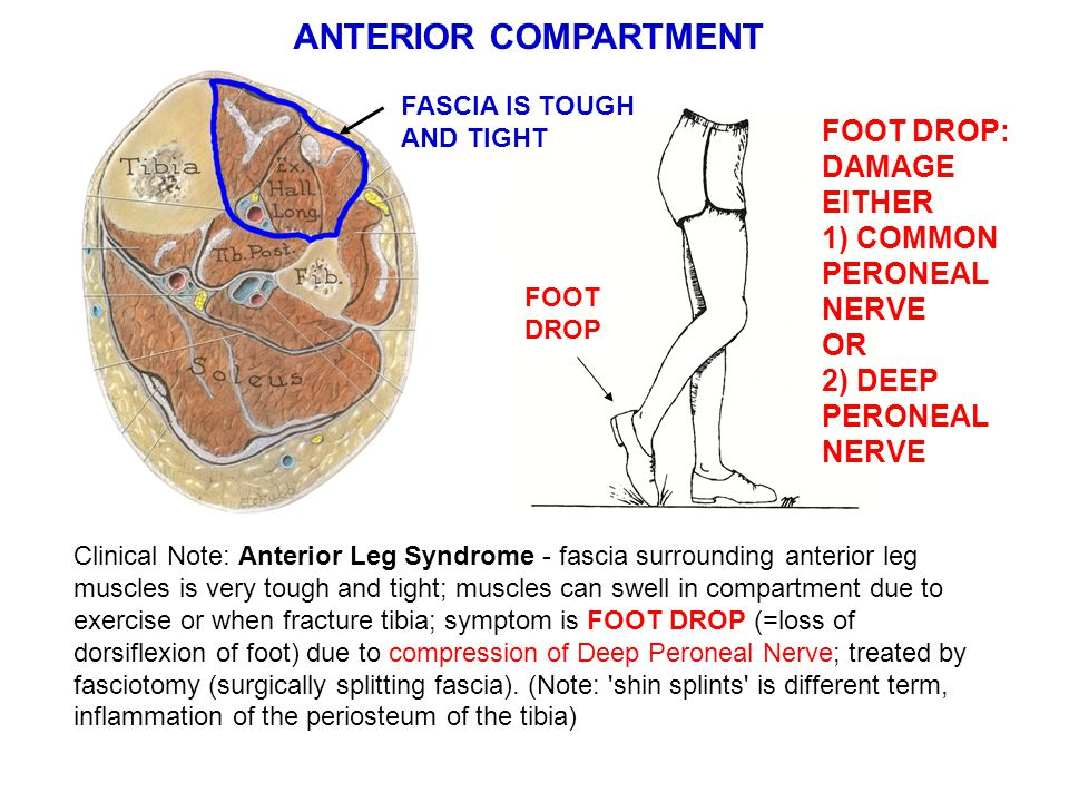 ANTERIOR COMPARTMENT FOOT DROP: DAMAGE EITHER 1) COMMON PERONEAL NERVE