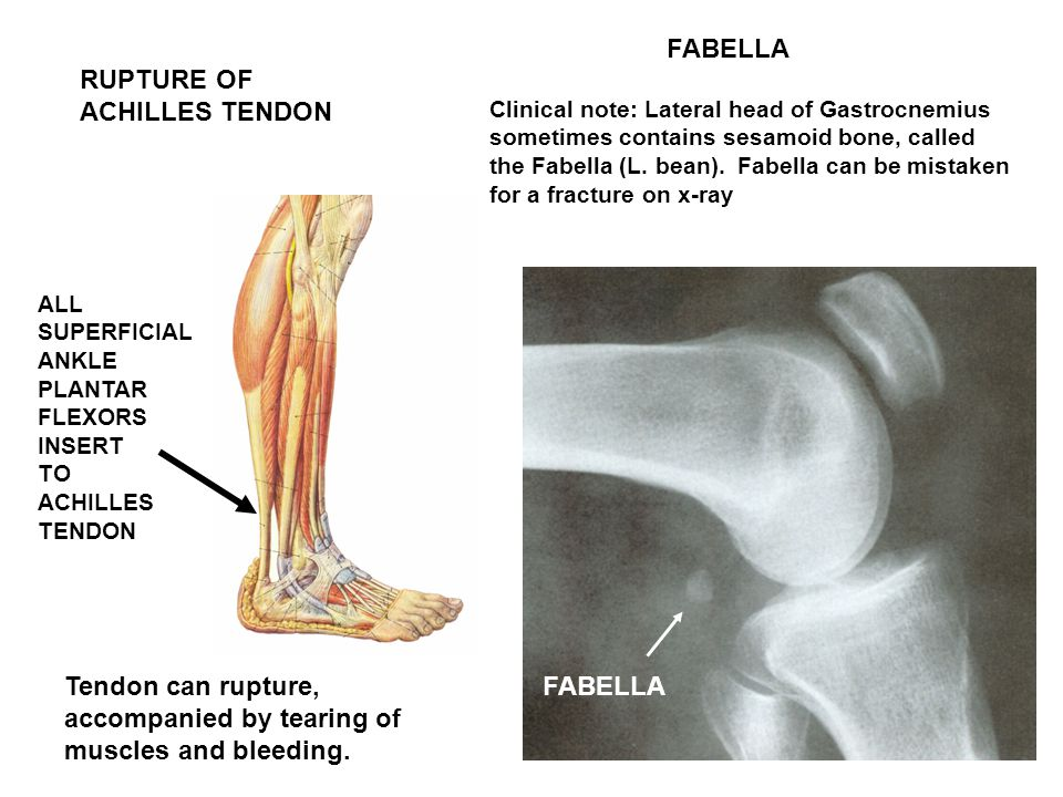 Tendon can rupture, accompanied by tearing of muscles and bleeding.