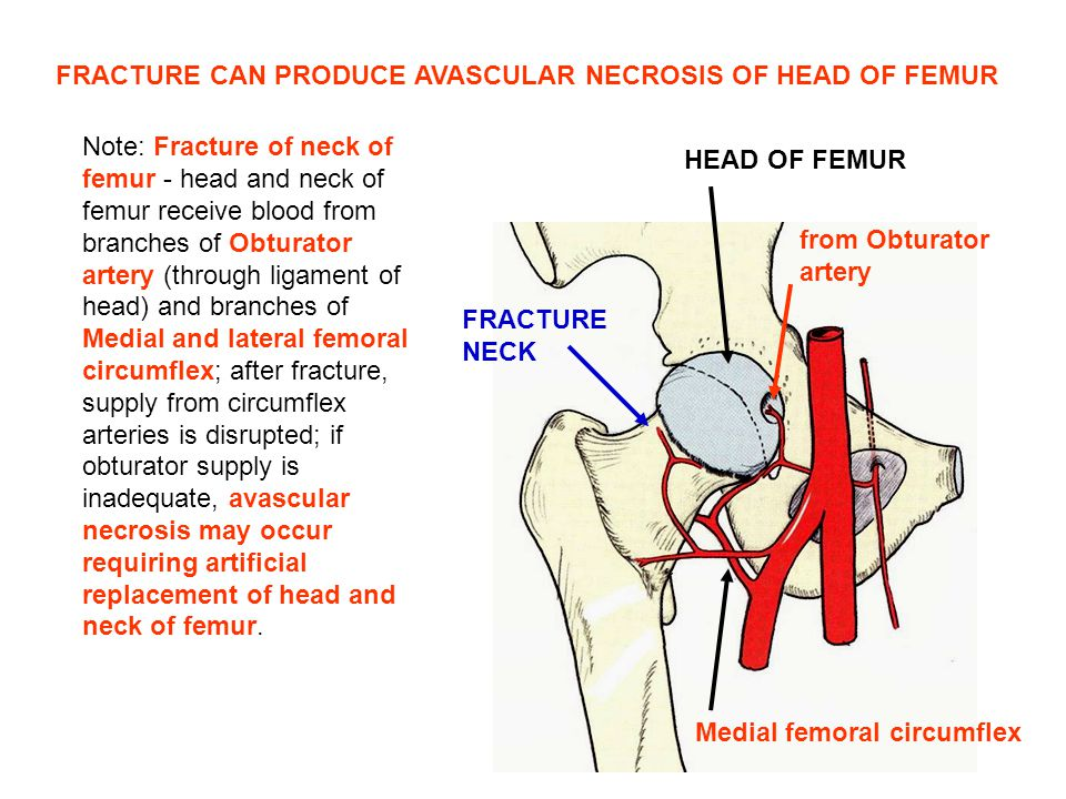 FRACTURE CAN PRODUCE AVASCULAR NECROSIS OF HEAD OF FEMUR
