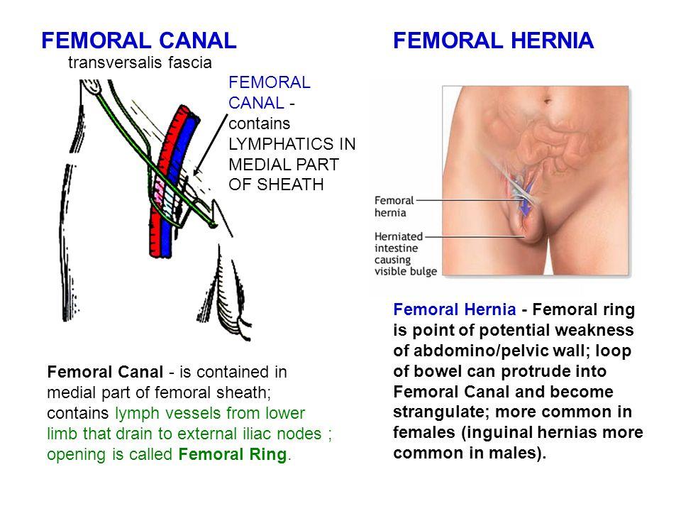 FEMORAL CANAL FEMORAL HERNIA transversalis fascia