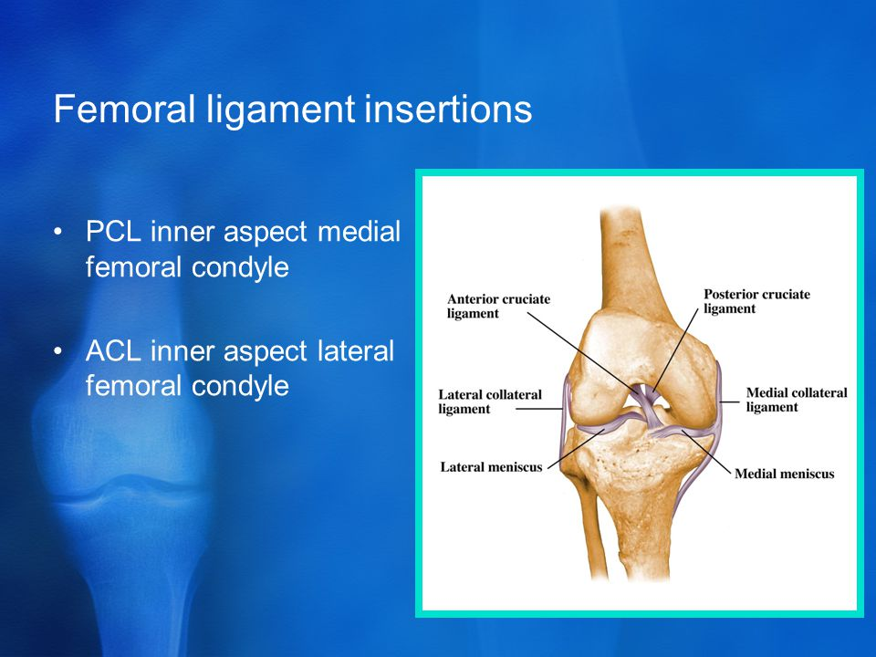 Femoral ligament insertions