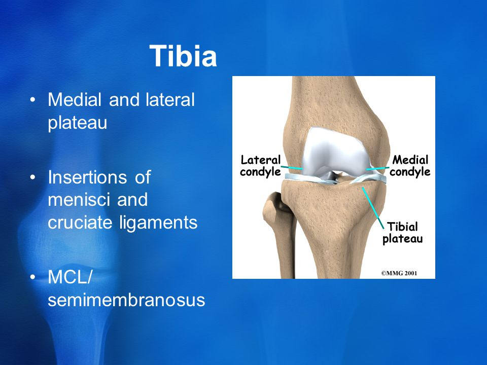Tibia Medial and lateral plateau