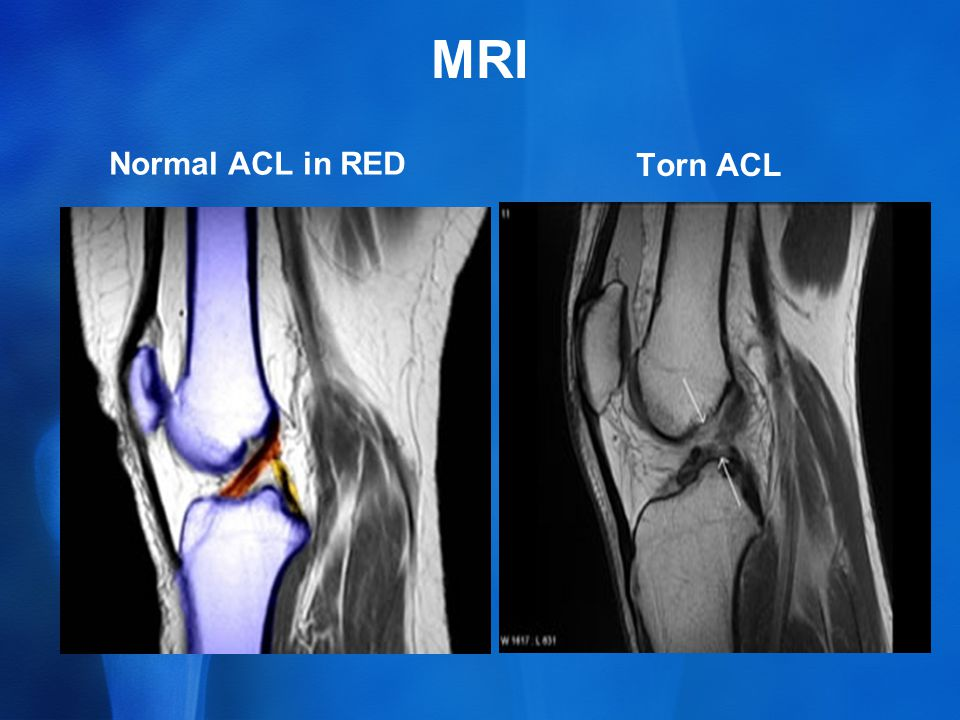 MRI Normal ACL in RED Torn ACL