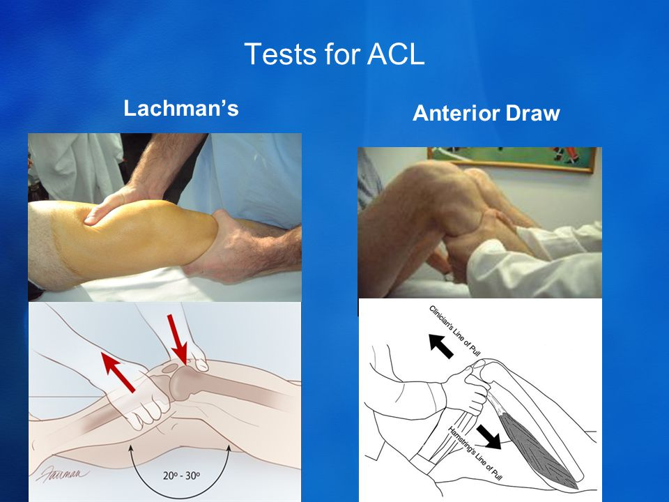 Tests for ACL Lachman's Anterior Draw