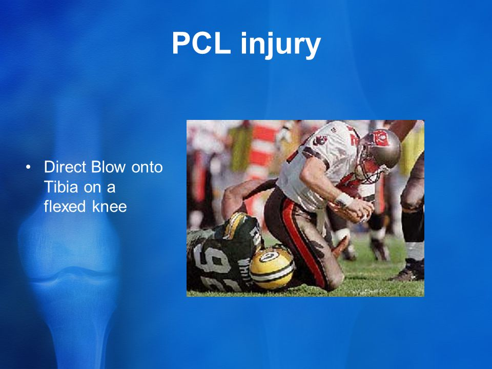PCL injury Direct Blow onto Tibia on a flexed knee