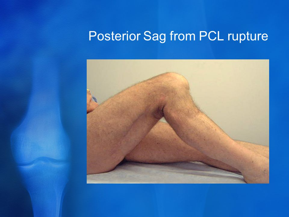 Posterior Sag from PCL rupture