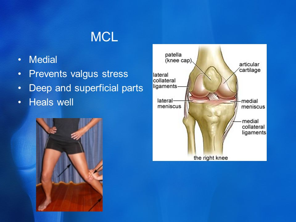 MCL Medial Prevents valgus stress Deep and superficial parts