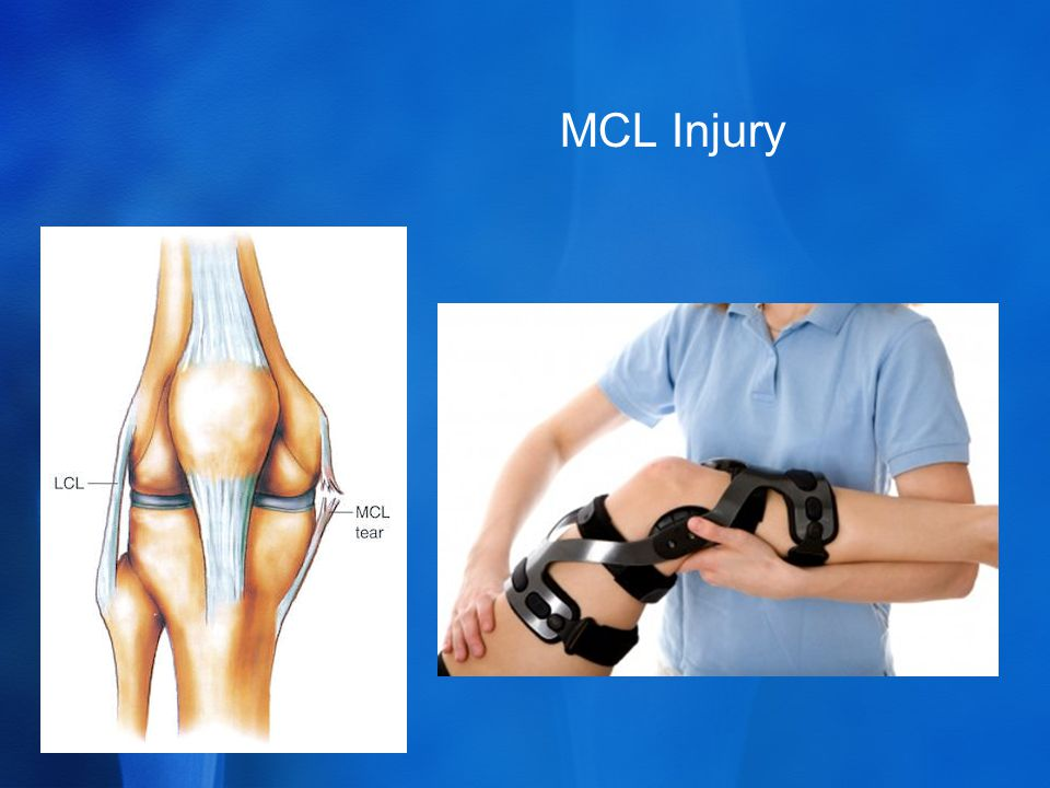 MCL Injury