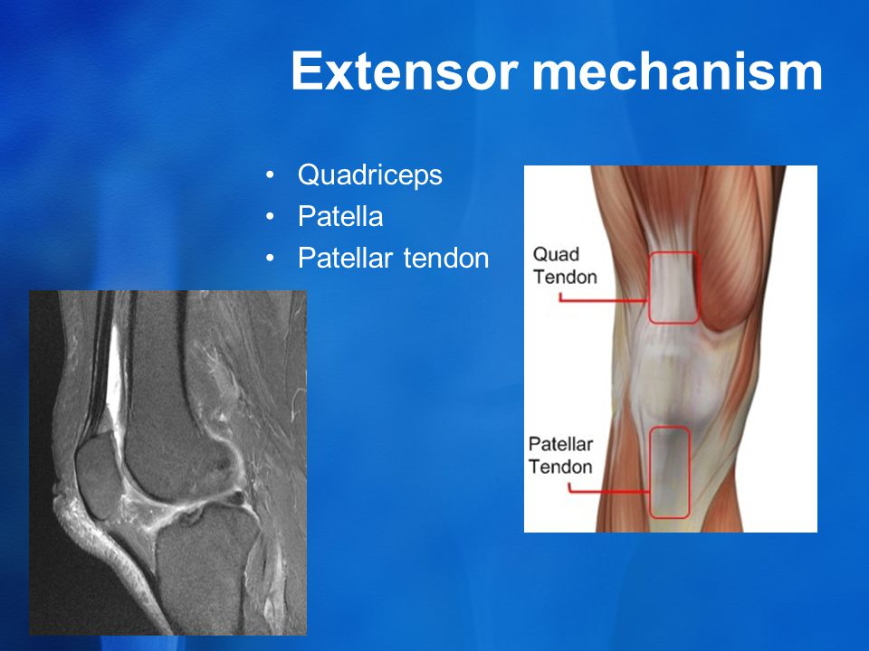 Extensor mechanism Quadriceps Patella Patellar tendon