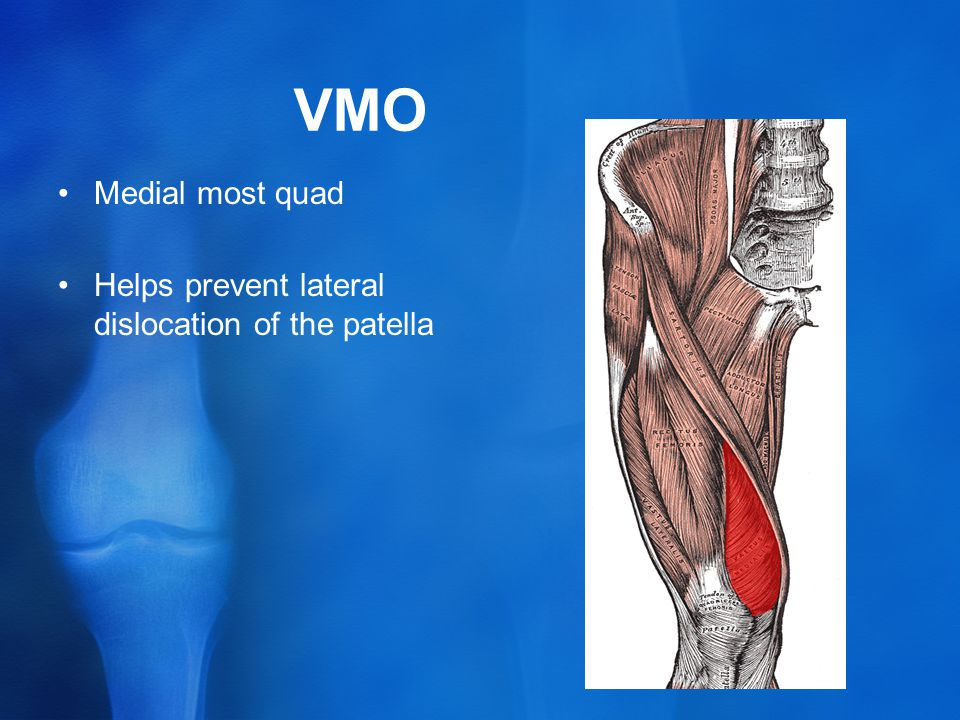 VMO Medial most quad Helps prevent lateral dislocation of the patella