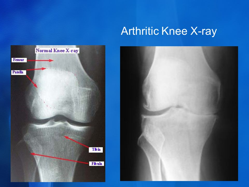 Arthritic Knee X-ray
