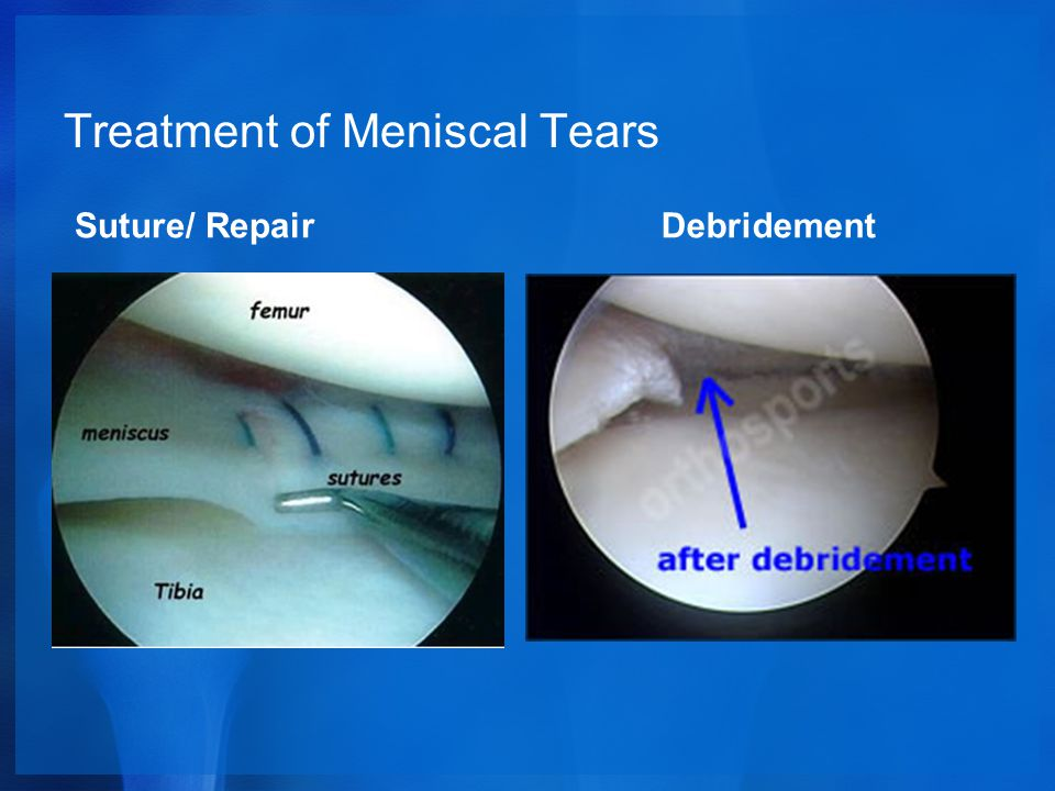 Treatment of Meniscal Tears