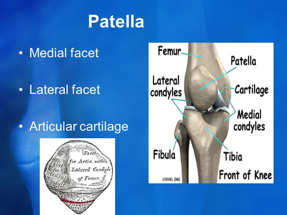 Patella Medial facet Lateral facet Articular cartilage