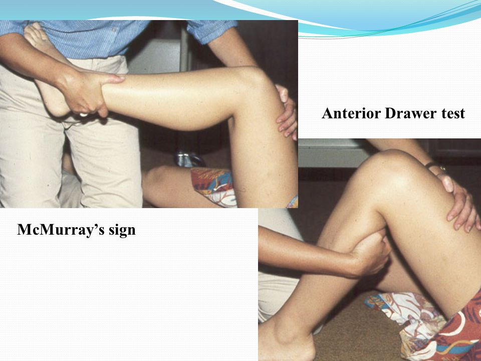 Anterior Drawer test McMurray's sign