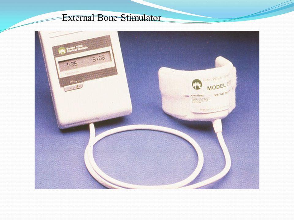 External Bone Stimulator