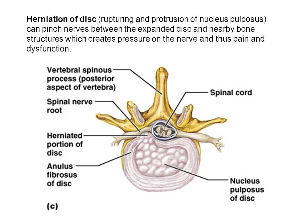 Herniation of disc (rupturing and protrusion of nucleus pulposus) can pinch nerves between the expanded disc and nearby bone structures which creates pressure on the nerve and thus pain and dysfunction.