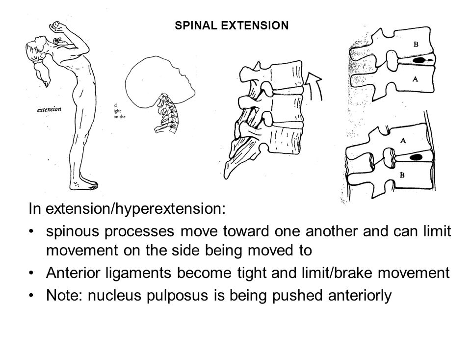 In extension/hyperextension: