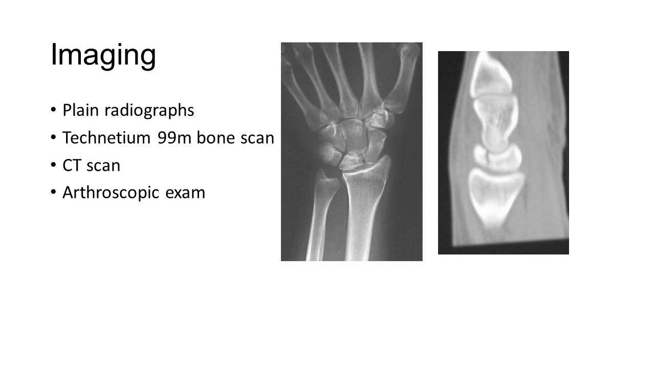 Imaging Plain radiographs Technetium 99m bone scan CT scan