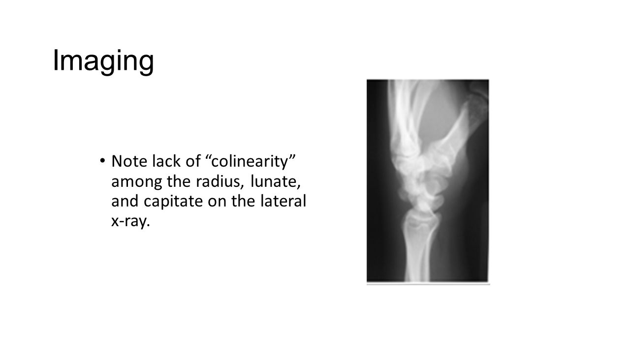 Imaging Note lack of colinearity among the radius, lunate, and capitate on the lateral x-ray.