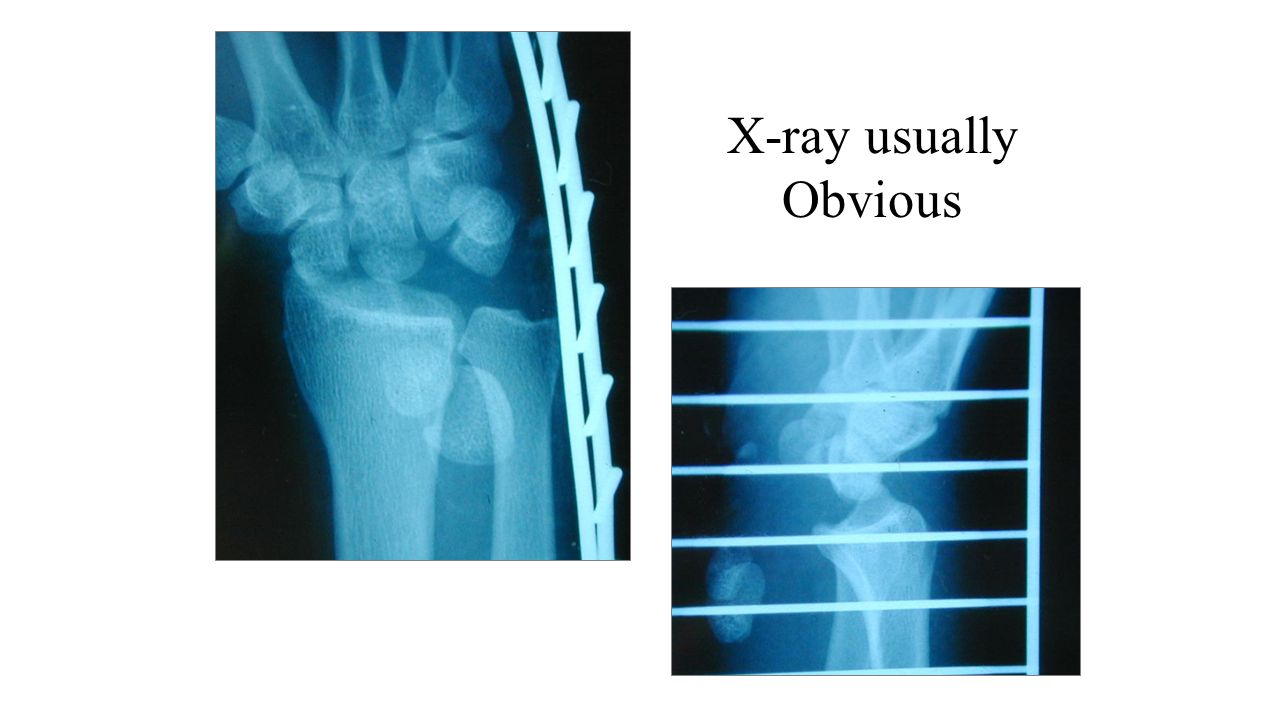 X-ray usually Obvious