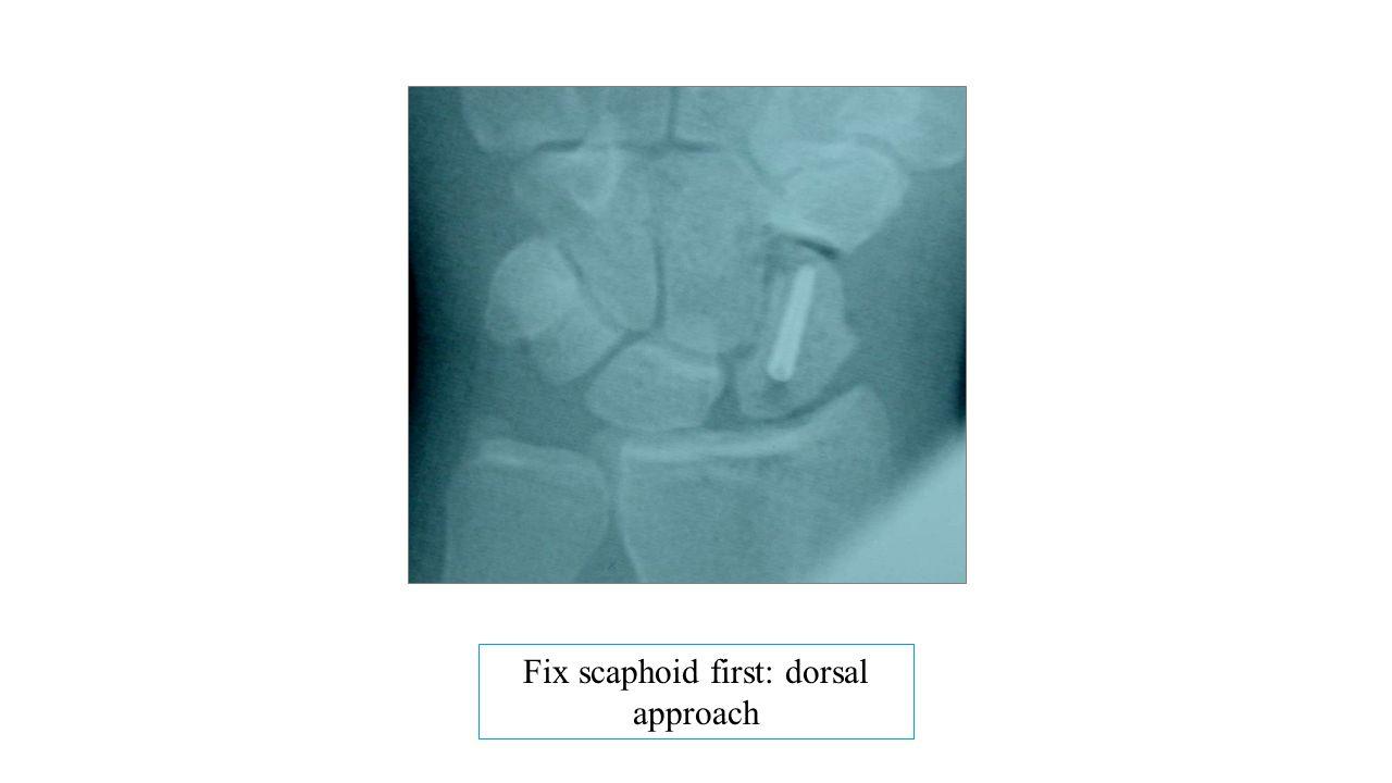 Fix scaphoid first: dorsal approach