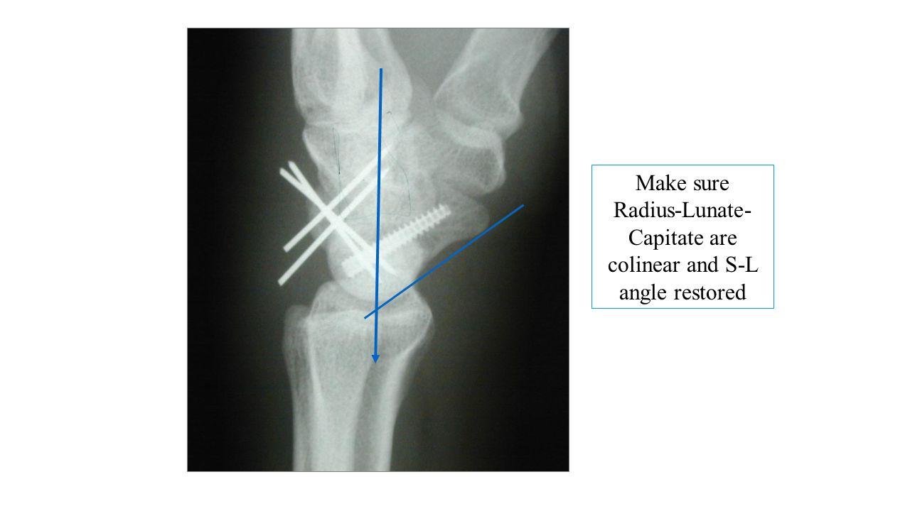 Make sure Radius-Lunate-Capitate are colinear and S-L angle restored