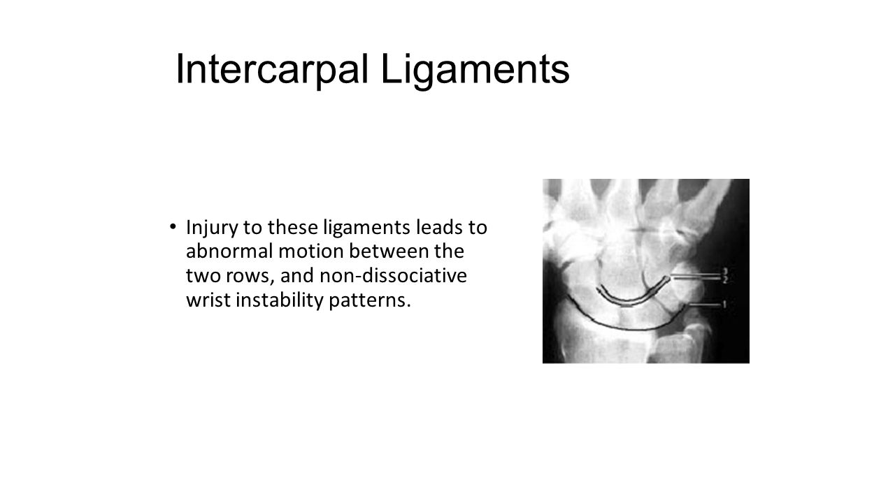 Intercarpal Ligaments