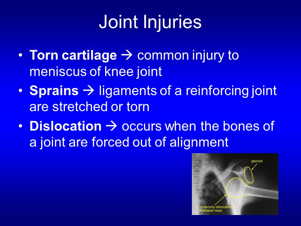 Joint Injuries Torn cartilage  common injury to meniscus of knee joint. Sprains  ligaments of a reinforcing joint are stretched or torn.