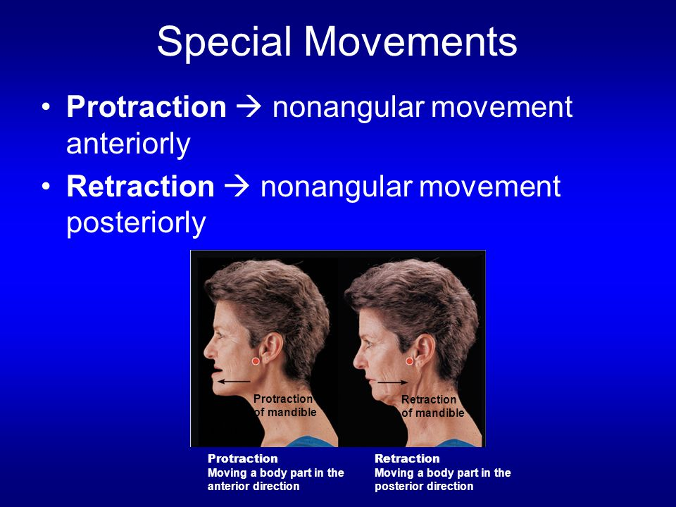 Special Movements Protraction  nonangular movement anteriorly