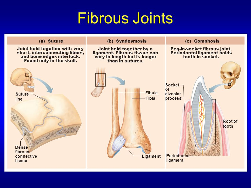 Fibrous Joints (a) Suture (b) Syndesmosis (c) Gomphosis