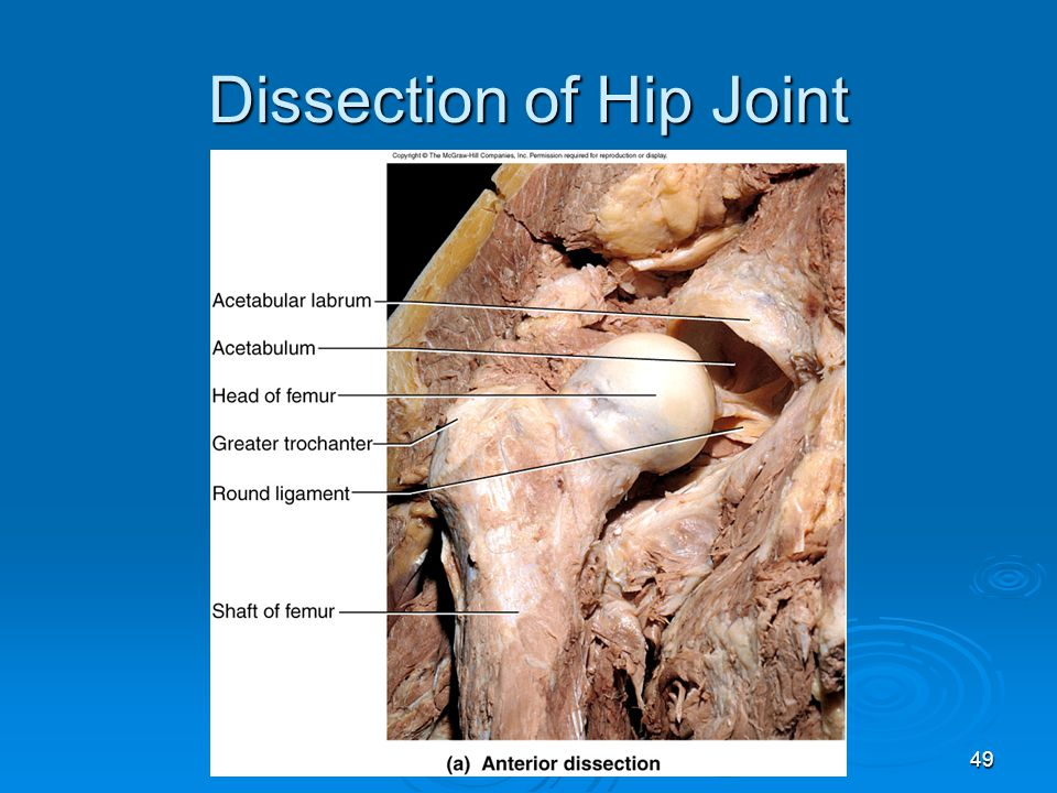 Dissection of Hip Joint